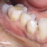 Восстановление тканей зубов при лечении кариеса