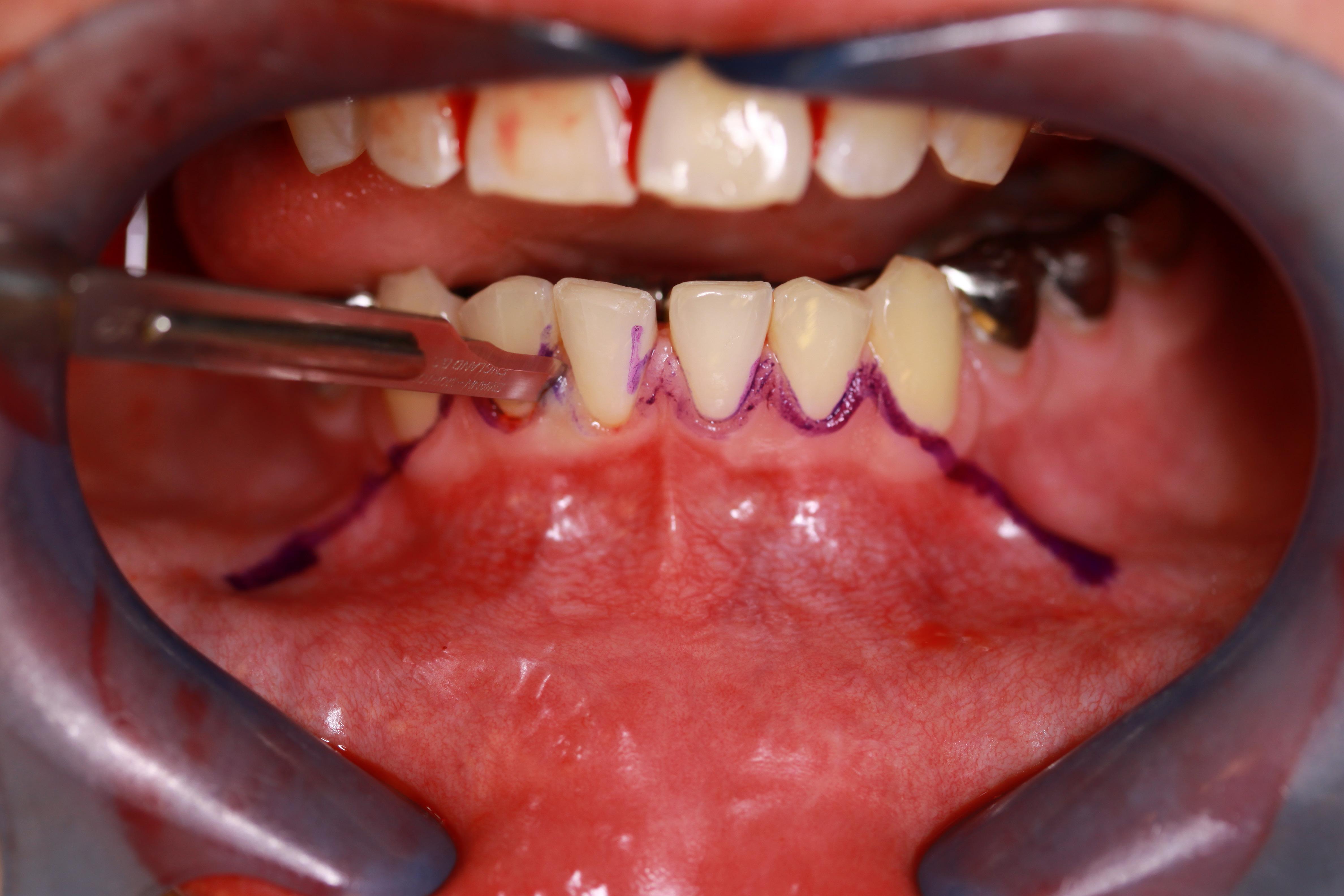 Рис. 9. Разрез во фронтальном отделе по сосочкам зубов.