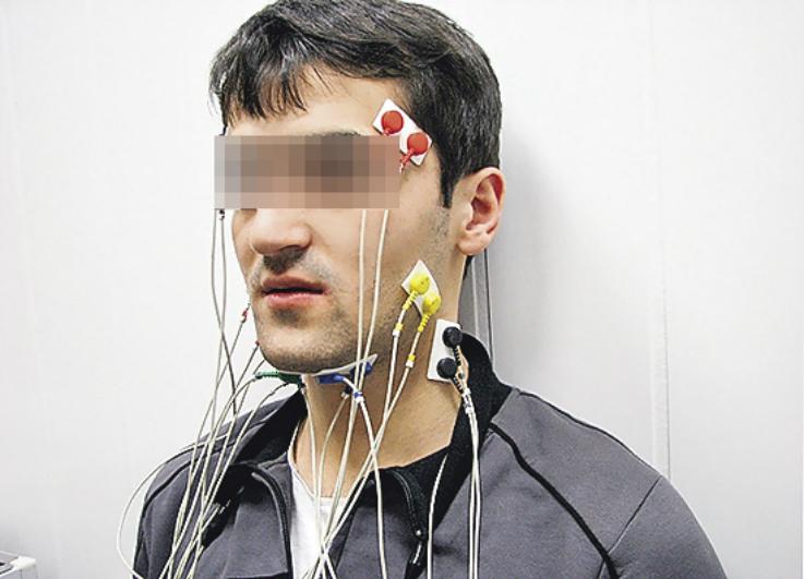 Рис. 2. Расположение электродов на лице обследуемого пациента Н., 18 лет.