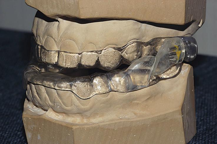 Рис. 1. Фотография внутриротового терапевтического аппарата Луганского, установленного на рабочих моделях.
