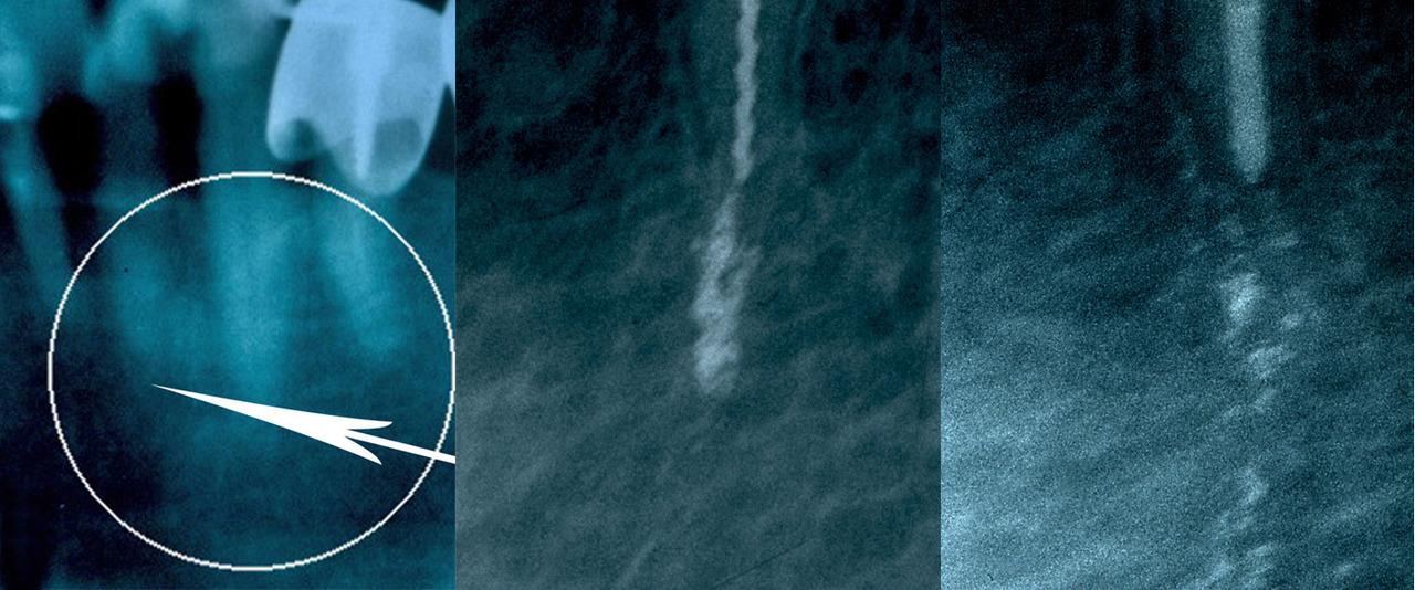 Рис. 2. 2.1 — прикорневой очаг разрежения костной ткани; 2.2 — введенный в прикорневую зону разрежения компаунд из наноструктурированного порошка никелида титана и ГАНГ, определяется в виде конгломерата; 2.3 — через 70 дней после лечения наночастицы никелида титана собрались в гранулы, участвуя в ремоделировании кости.