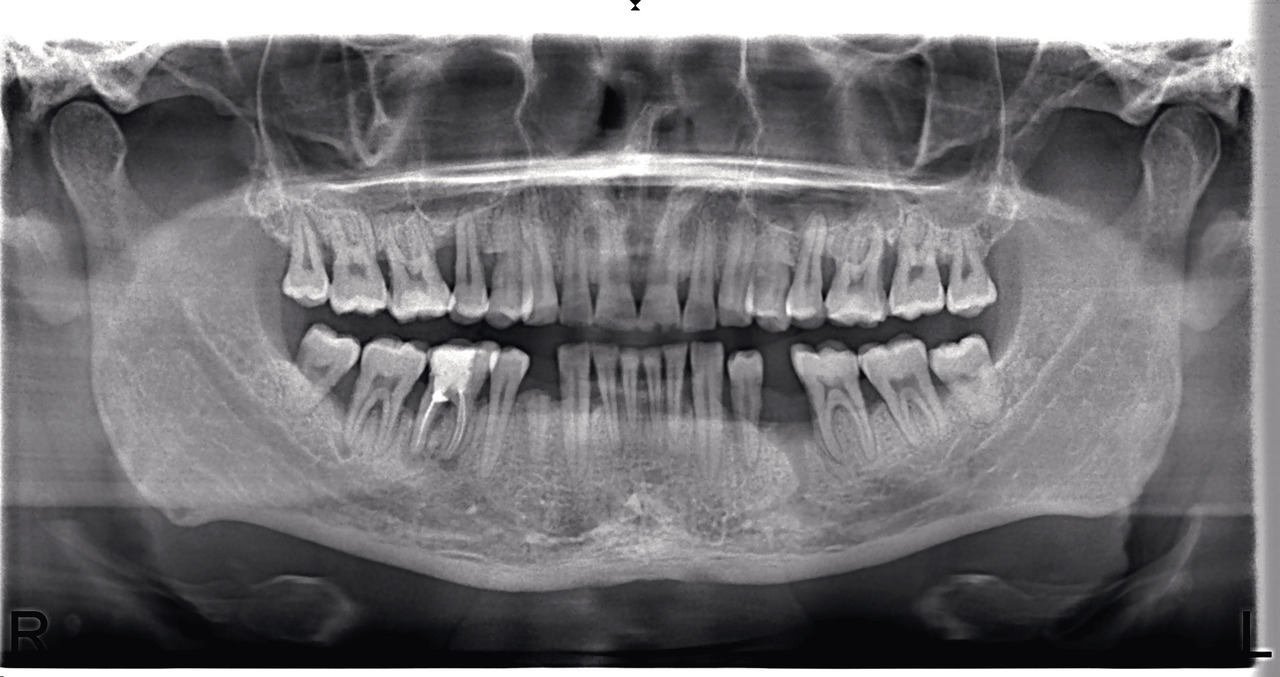 Рис. 2. Сочетание хронического гранулематозного периодонтита (кистогранулемы) с вертикальным и горизонтальным типом деструкции кости межзубных/межкорневых перегородок.