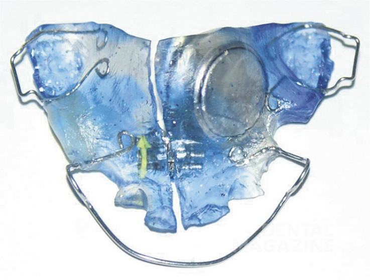 Рис. 2. Съемный ортодонтический аппарат с установленным термографом.
