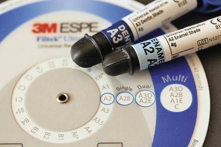 Рис. 3. Процедура выбора с помощью колеса-селектора комбинации дентинного и эмалевого оттенков: A3D и эмали A2E для получения оттенка А2 (окошко Dual).