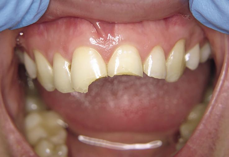 Рис. 3. Зубы 11, 21 и 22: исходная ситуация.