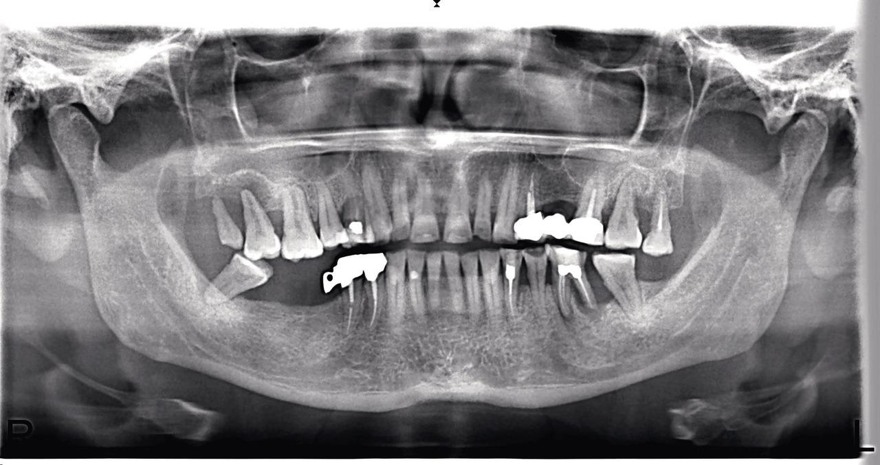 Рис. 4. Сочетание хронического гранулирующего периодонтита с вертикальным типом деструкции кости межзубных/межкорневых перегородок.