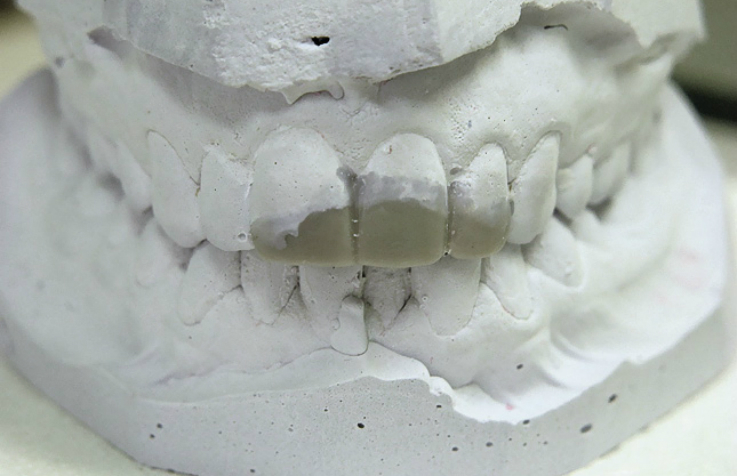 Рис. 4. Модели из гипса с отмоделированными зубами.