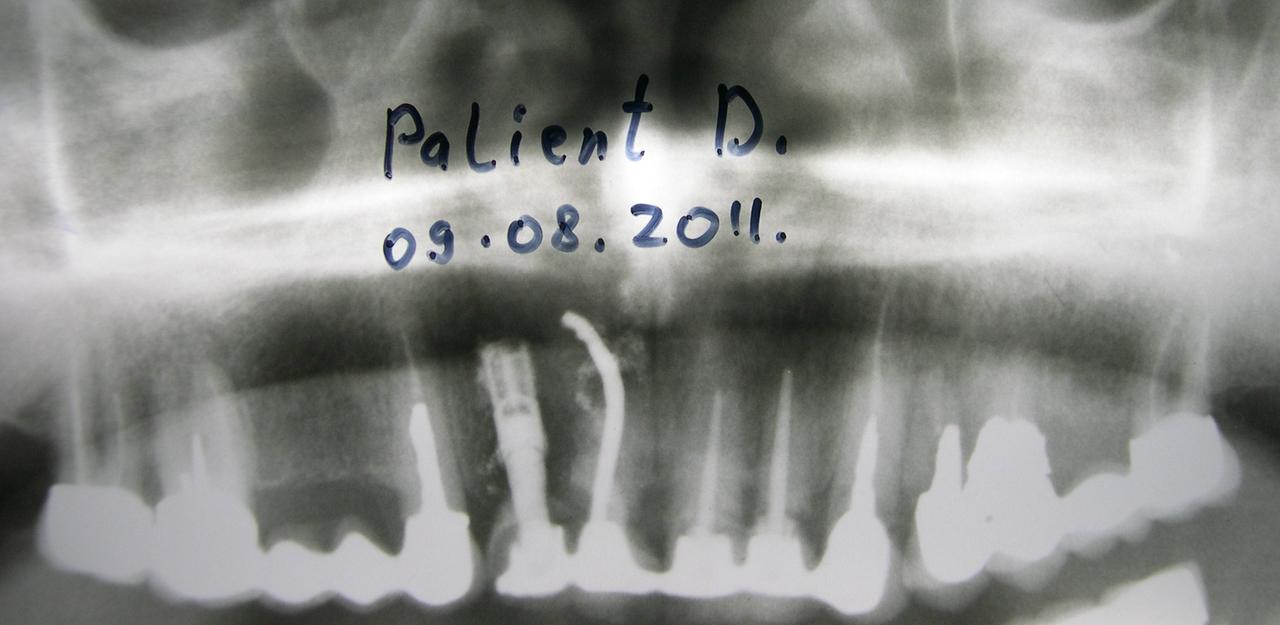 Рис. 5е. Пациентка Д., 52 лет. Фениксон.