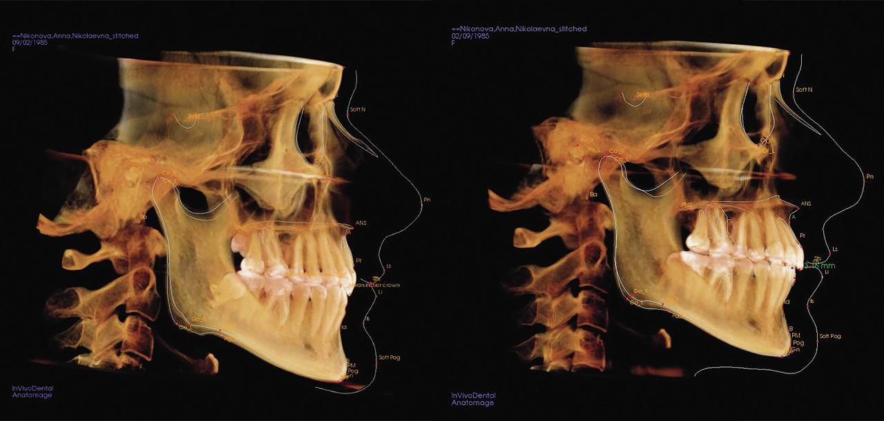 Рис. 6. 3D-цефалометрический анализ. Проклинирование верхних резцов на 20 градусов за 11 мес. лечения на индивидуальной брекет-системе Insignia согласно виртуальному сетапу.
