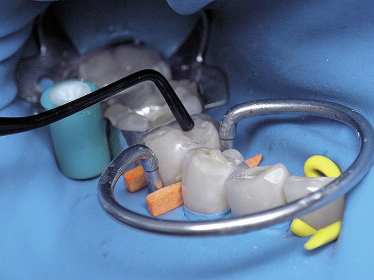 Рис. 7. Воссоздание анатомической формы зуба с помощью композита X-tra fil.