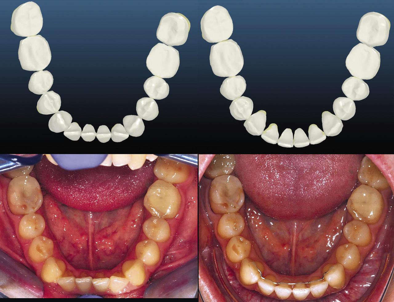 Рис. 9. Окклюзионные фотографии и виртуальный сетап верхнего зубного ряда.