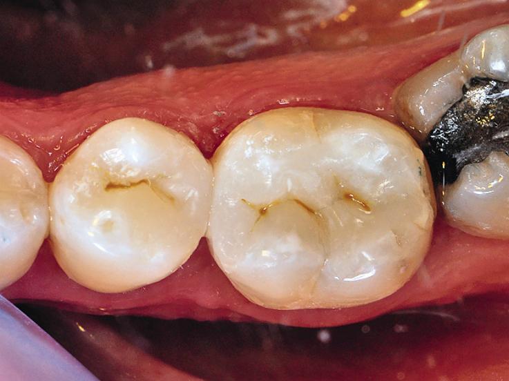 Рис. 20. Контрольная оценка 35 и 36 зубов через месяц.