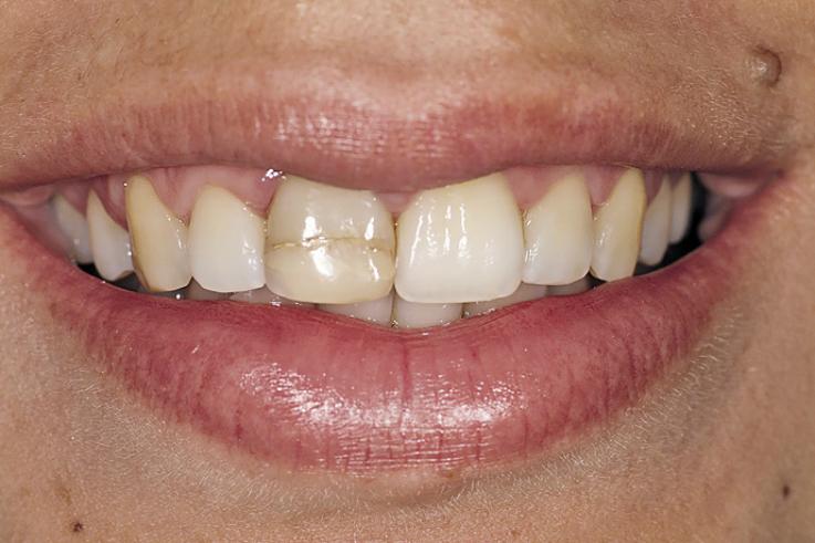 Рис. 1. Сильно окрашенный зуб 11.