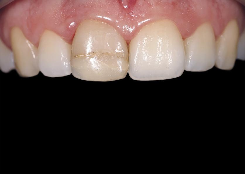 Рис. 2. Форма зуба 11 соответствует форме зуба 12. Степень утраты твердых тканей зуба составляет чуть меньше половины.
