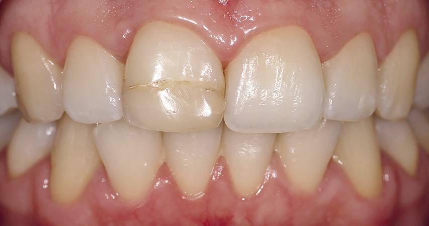 Рис. 3. После отбеливания твердые ткани зуба 11 приобретают оптимальный оттенок.