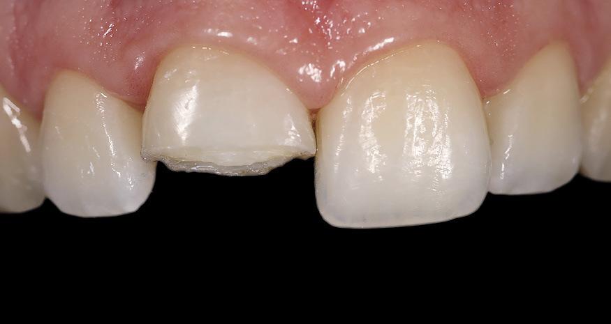 Рис. 4. Препарированный зуб 11 с желобообразным уступом на вестибулярной поверхности и прямой перпендикулярной кромкой на нёбной поверхности.