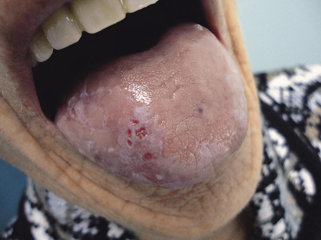 Рис. 1. Эрозии и язвы языка при лейкоплакии (до лечения).