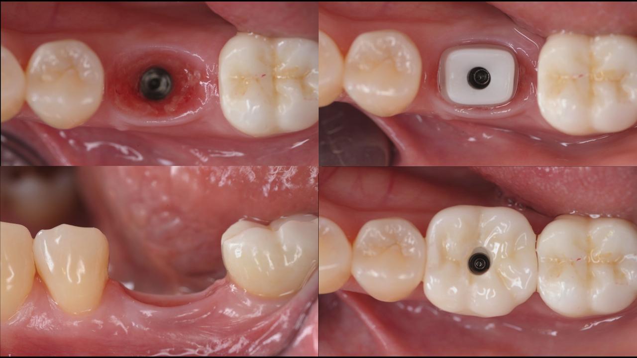 Рис. 4. Максимальное сохранение мягких тканей вокруг имплантата диаметром 6 мм.