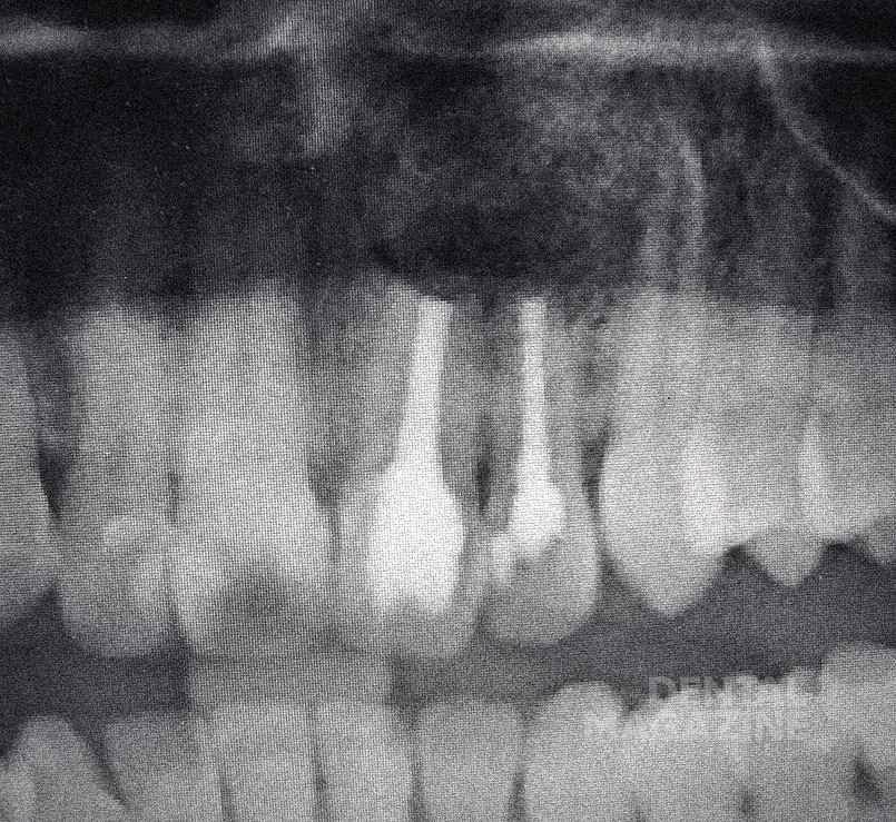 Рис. 1в. Состояние тканей через 3 месяца после операции. Ортопантомограмма.
