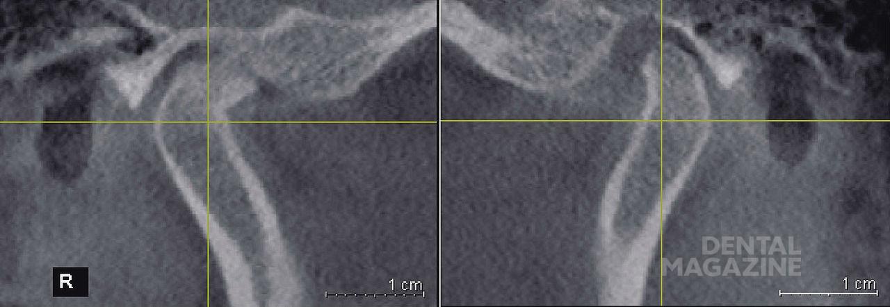 Рис. 12. Правый и левый височно-нижнечелюстной суставы пациентки Д., 42 лет (сагиттальный срез).