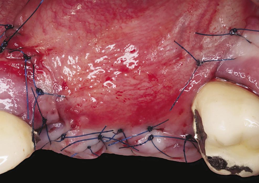 Рис. 11. Первичное закрытие раны: вид с вестибулярной стороны.