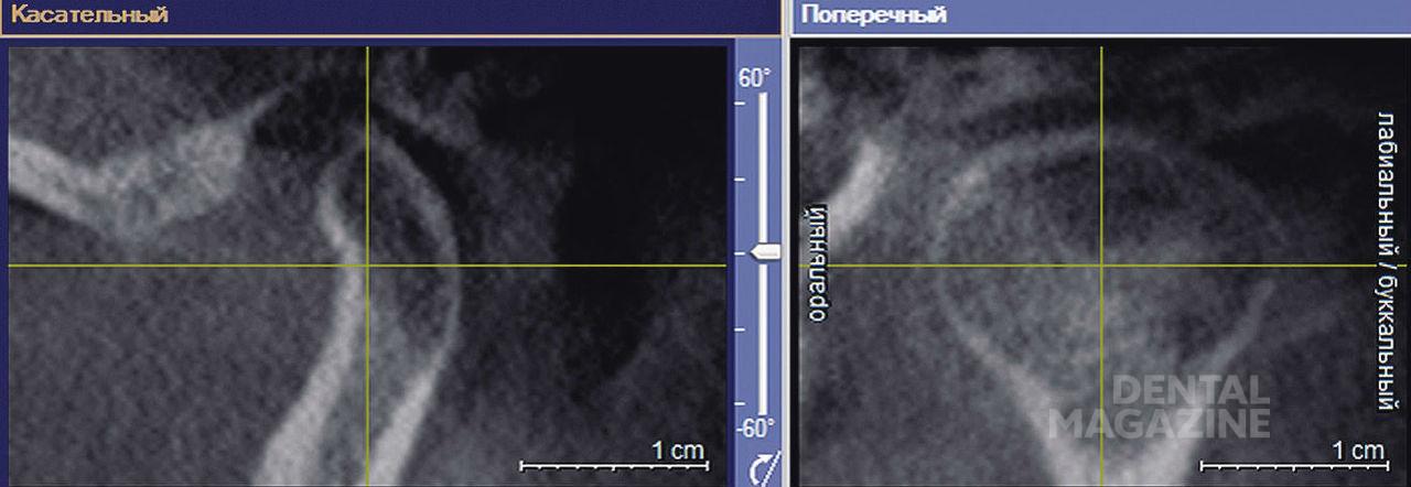Рис. 1. Расположение координатных осей при изучении головки нижней челюсти.