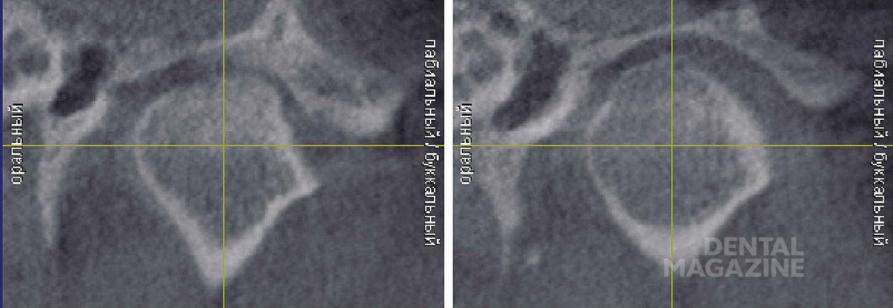 Рис. 13. Правый и левый височно-нижнечелюстной суставы пациентки Д. (фронтальный срез).