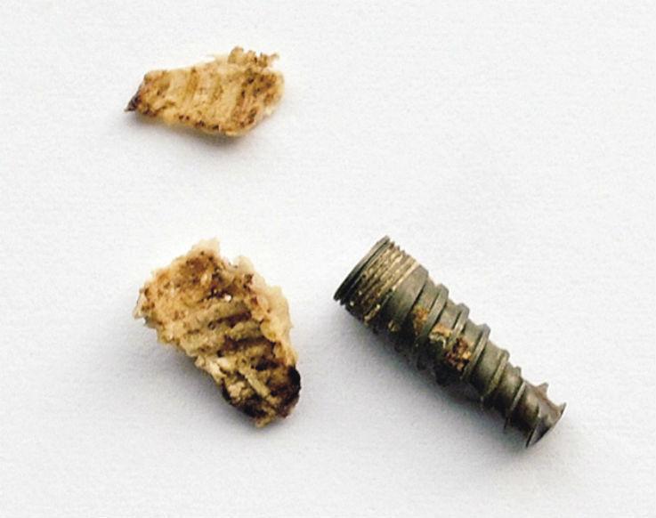 Рис. 1. Извлеченный 24 имплантат и секвестры костной ткани.