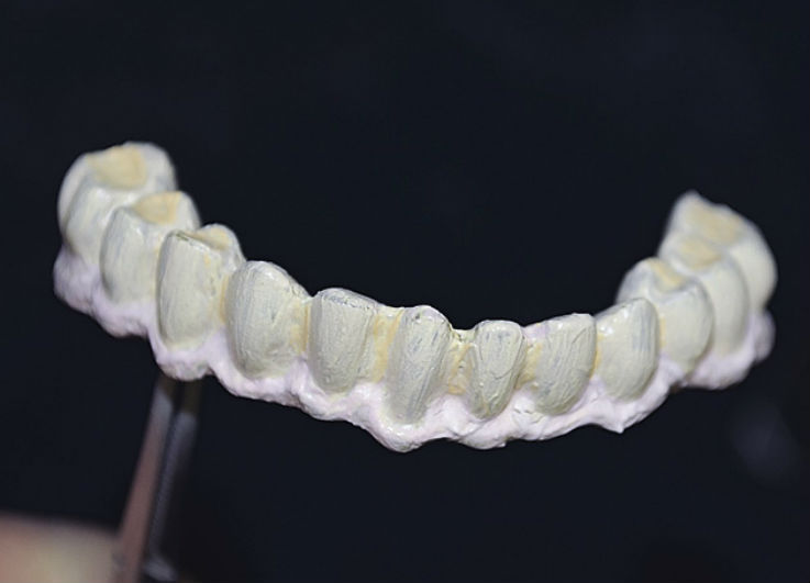 Рис. 15. Нанесение керамических масс GC Initial Gum Shades.