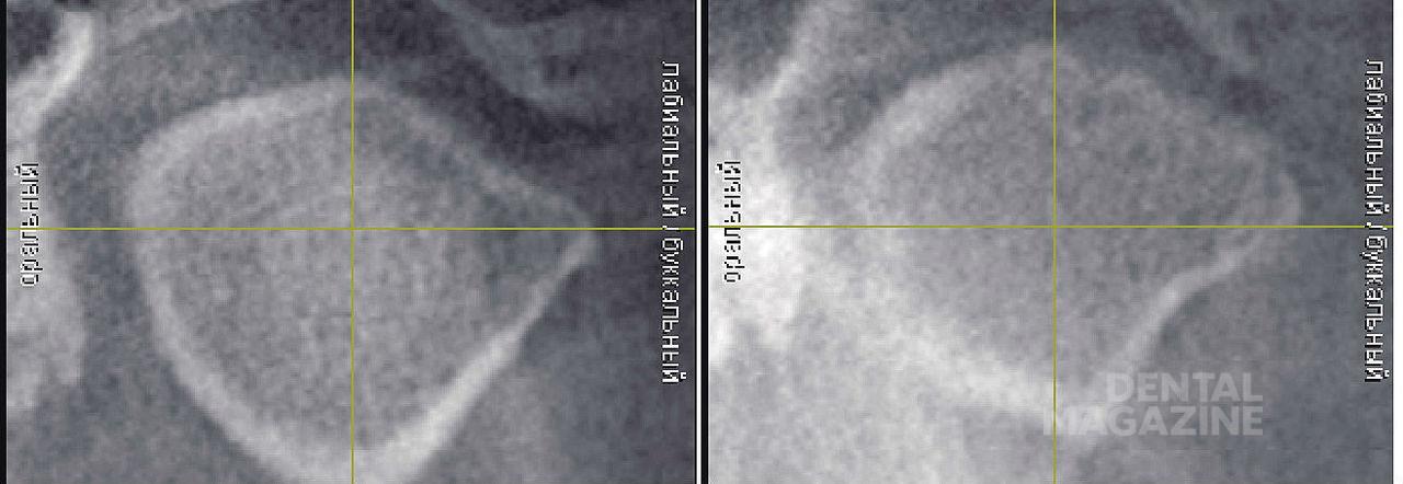 Рис. 15. Правый и левый височно-нижнечелюстной суставы пациента М. (фронтальный срез).