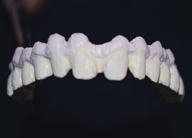 Рис. 16. Нанесение керамических масс GC Initial Gum Shades.