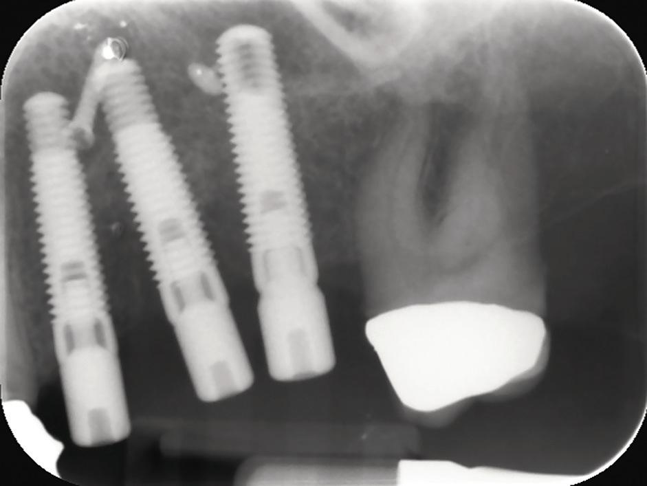 Рис. 16. Периапикальный рентген-снимок.