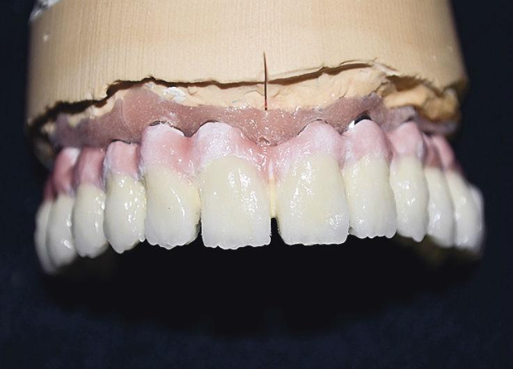 Рис. 18. Вид ортопедической конструкции после первого дентинного обжига.
