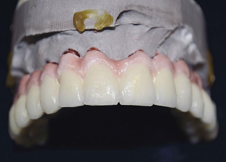 Рис. 20. Вид ортопедической конструкции после второго дентинного обжига.