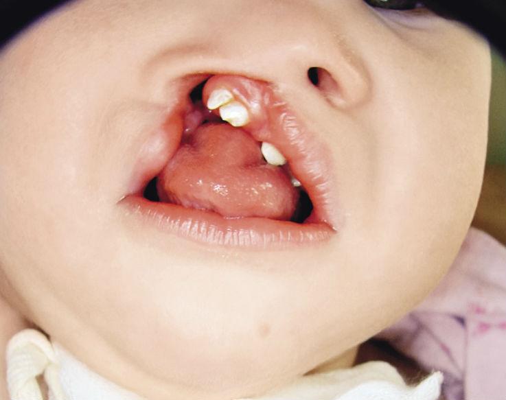 Рис. 2. Врожденная полная расщелина губы и неба, трахеостома.