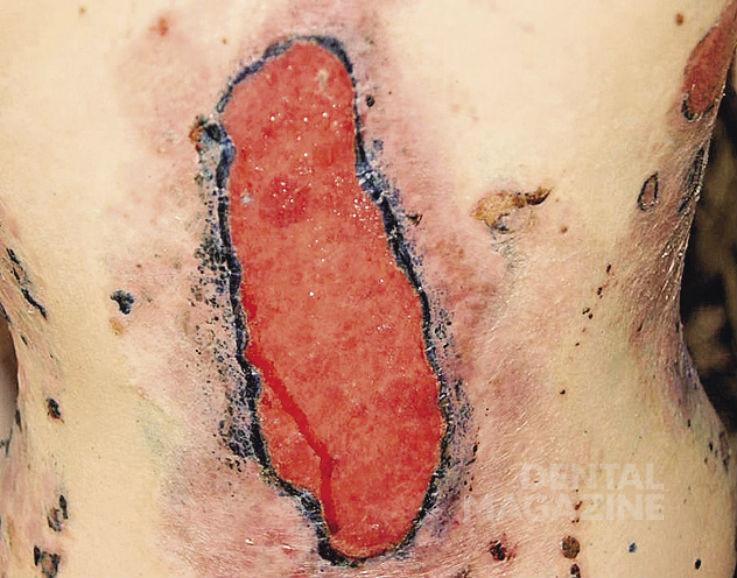 Рис. 2. Клинические проявления пузырчатки с локализацией на спине и боковых отделах туловища.