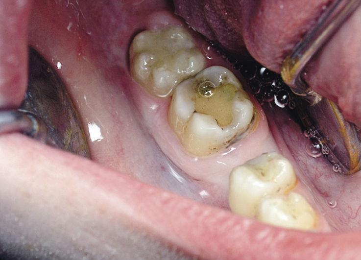 Рис. 3. Зуб 4.7: исходная клиническая ситуация.