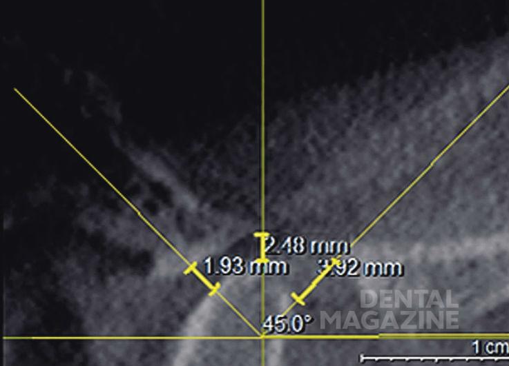 Рис. 4. Измерение ширины суставной щели в верхнем, переднем и заднем отделах суставной щели.