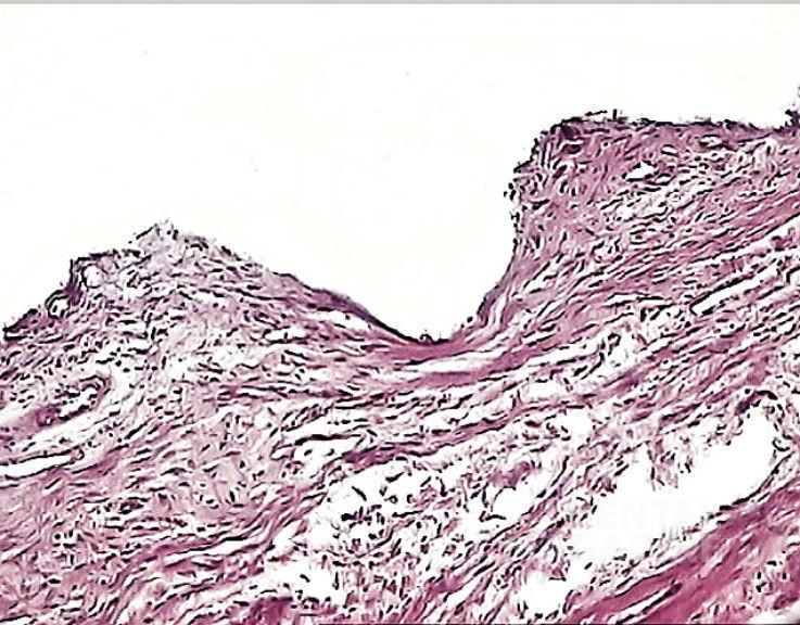 Рис. 4. 3 месяца после операции. Прорастание эпителия в пришеечном отделе имплантата. Соединительнотканная капсула выстлана тонким эпителиальным слоем из нескольких рядов клеток. В капсуле преобладают коллагеновые волокна и веретеновидные фибробласты. Воспалительная инфильтрация отсутствует. Окраска гематоксилином и эозином, увеличение Х 400.