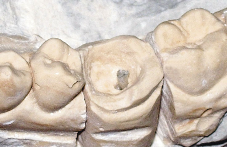 Рис. 5в. Этапы восстановления зуба с помощью композитной вкладки.