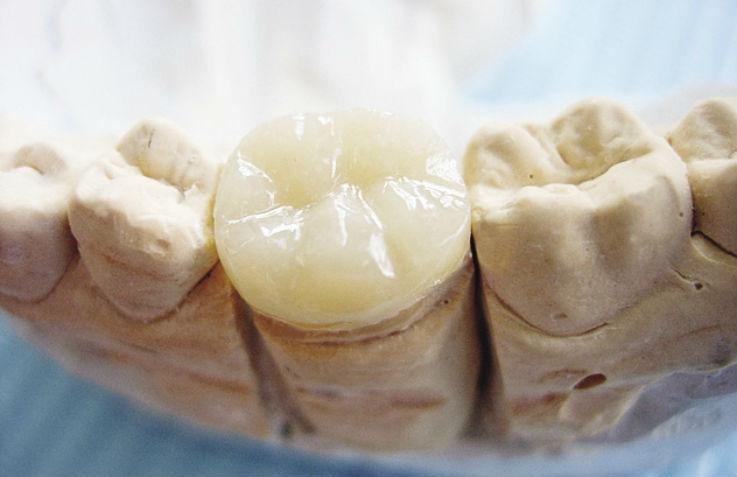 Рис. 5г. Этапы восстановления зуба с помощью композитной вкладки.