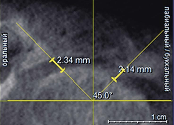 Рис. 5. Измерение ширины суставной щели в мезиальном и латеральном отделах суставной щели.