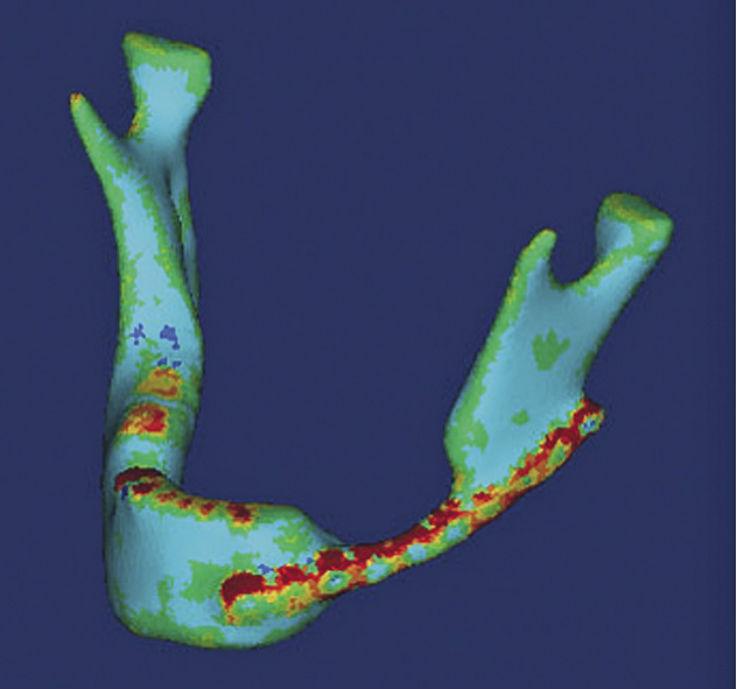 Рис. 5. 3D-модель НЧ с распределением модуля упругости.