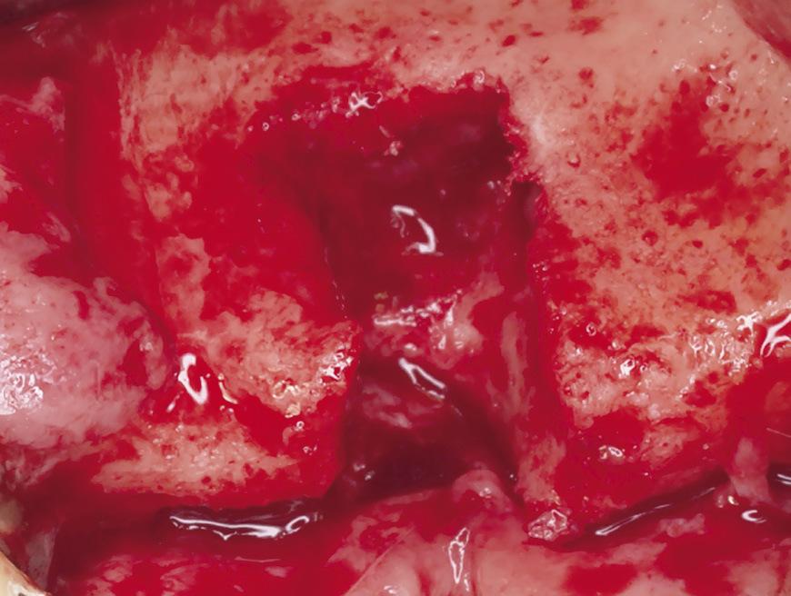 Рис. 5. Предоперационная диагностика: вертикальный дефект в области 24 зуба.