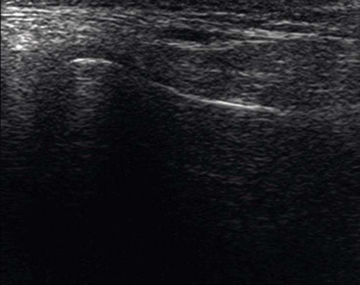 Рис. 6. Капсульно-шеечное пространство. КЖ — кожа, подкожно-жировая клетчатка, поверхностная мышечно-апоневротическая система. ОКУ — околоушная слюнная железа. Д з.-лат. — заднелатеральный фрагмент суставного диска. Кап. з.-лат. — заднелатеральный фрагмент капсулы. КМП з.-лат. — заднелатеральное капсульно-мыщелковое пространство. Г з.-лат. — заднелатеральный фрагмент головки мыщелкового отростка. Бил. з. — биламинарная зона. НЧ зад. К В — задний край ветви нижней челюсти.
