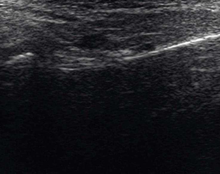 Рис. 7. Фронтальный скан кпереди от головки. КЖ — кожа, подкожно-жировая клетчатка, поверхностная мышечно-апоневротическая система. ОКУ — околоушная слюнная железа. Д пер.-лат. — переднелатеральный фрагмент суставного диска. Кап. пер.-лат. — переднелатеральный фрагмент капсулы. Пер-лат. КМП — переднелатеральное капсульно-мыщелковое пространство. Г пер.-лат. — переднелатеральный фрагмент головки мыщелкового отростка. Сух. ЛКМ (а и б) — сухожилия латерально крыловидной мышцы. Выр. дорс. К — дорсальный край вырезки нижней челюсти.