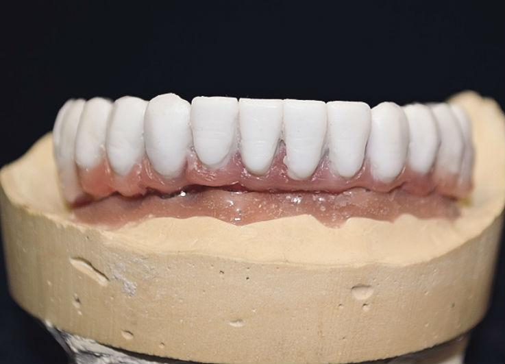 Рис. 7. Изготовлен Mock-up зубных рядов нижней и верхней челюстей.
