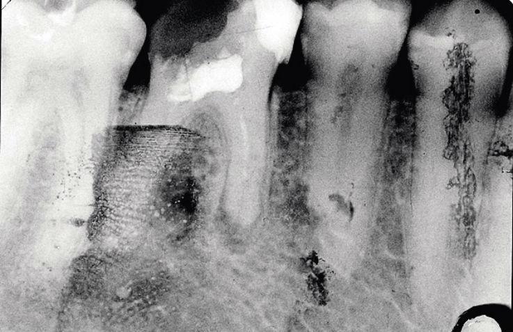 Рис. 8а. Зуб 3.7, Ds: хронический фиброзный периодонтит 3.7, (повторное эндодонтическое лечение, резорбция корней): исходная ситуация.