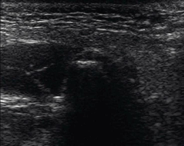 Рис. 8. Траектория движения головки. КЖ — кожа, подкожно-жировая клетчатка, поверхностная мышечно-апоневротическая система. ОКУ — околоушная слюнная железа. ЖМ — жевательная мышца: а — поверхностная часть, б — глубокая часть. Лат. КМ — латеральная крыловидная мышца: а — верхняя головка, б — нижняя головка. Д лат. — латеральный фрагмент суставного диска. Кап. лат. — латеральный фрагмент капсулы. КМП лат. — латеральное капсульно-мыщелковое пространство. Г в.-лат. — верхнелатеральный фрагмент головки мыщелкового отростка. Стрелка повторяет траекторию движения головки мыщелкового отростка при открывании рта.