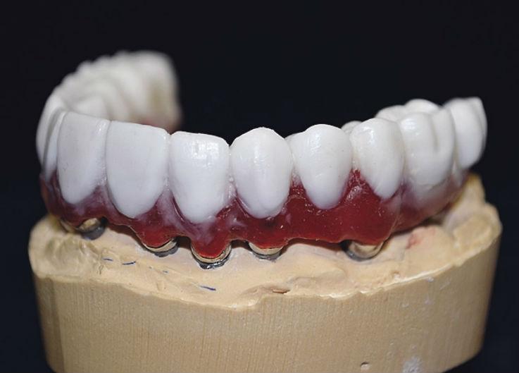 Рис. 8. Изготовлен Mock-up зубных рядов нижней и верхней челюстей.